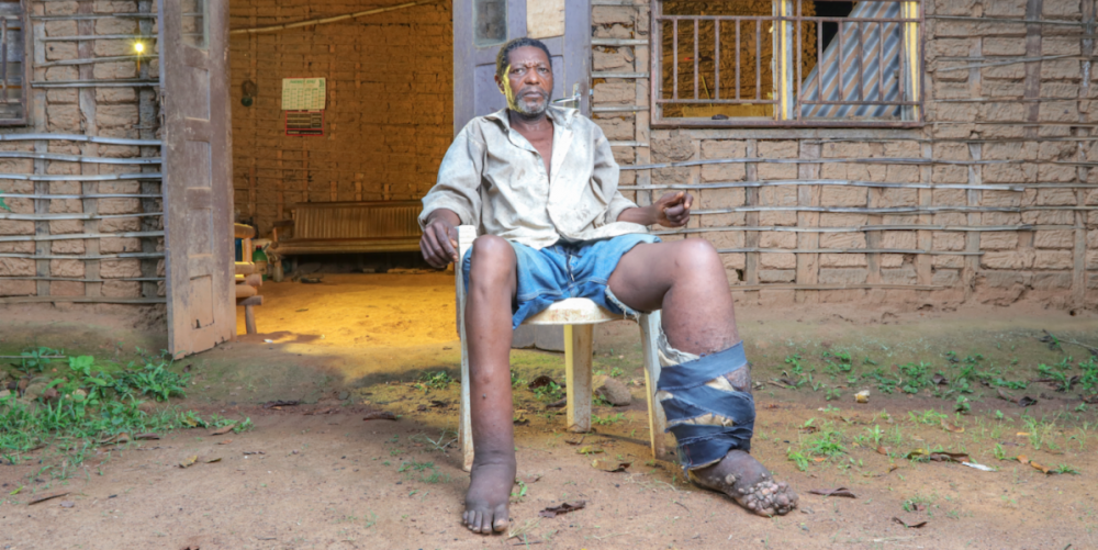 Man sitting in a chair displaying a swollen leg wrapped in bandages